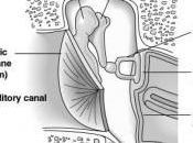 Traitements Acouphènes Stimulation Electrique Extracochléaire Promontoire Fenêtre Ronde (1ère Partie)
