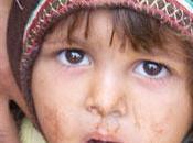 Yemen conflit oublié