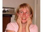 Masques beauté pour combattre l'acné