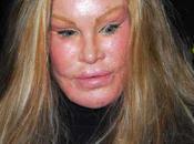 Jocelyn Wildenstein: dangers chirurgie esthétique