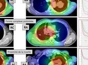 Critères substitution pour l'évaluation survie lors essais chimiothérapie radiothérapie dans cancer poumon opérable localement avancé: nouvelle analyse méta-analyses données individuelles patients
