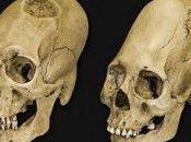 Découverte crânes forme allongée Russie