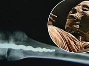 mystère d'une broche orthopédique genou momie égyptienne 3000