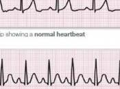 SANTÉ CARDIAQUE: petites irrégularités rythmiques sont révélatrices d'un corps sain Journal American College Cardiology