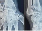Incarcération nerf ulnaire intra-osseux suite brochage pour fracture l'extrémité distale radius