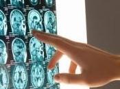 FIBROMYALGIE: motifs neurologiques pour traitement mieux personnalisé Pain