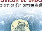 36/313 L'arpenteur cerveau