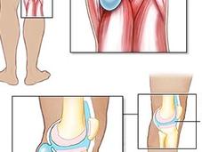 Kyste poplité causes, symptômes traitement