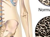 #thelancetdiabetesandendocrinology #ménopause #ostéoporose #denosumab traitement denosumab chez femmes post-ménopausées atteintes d'ostéoporose résultats l'étude phase FREEDOM prolongation ouvert
