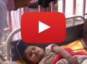 Yémen frappé épidémie choléra
