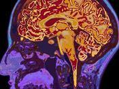 CERVEAU l'intelligence compenser avec l'âge Journal Neuroscience