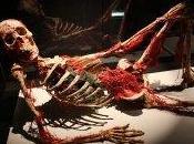 """L'exposition """"Our body"""" interdite Cadavres exquis …S'indigner Mathieu TOUZEIL-DIVINA"""