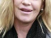 Horreur chirurgie Melanie Griffith