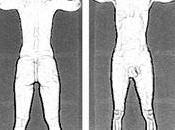 Athéna scanner corporel