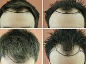 2927 avant après Clinic Clinique Greffe cheveux