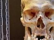 crâne humain vendre marché puces Belgrade