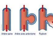 L'inflammation gencives augmente risques d'anévrisme l'aorte