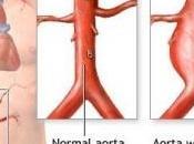 ANÉVRISME l'aorte abdominale: Première identification d'un gène responsable American Journal Human Genetics