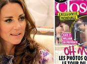 Choc Closer publie photos Kate Middleton topless