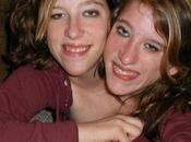 Abigail Brittany Hensel, soeurs siamoises