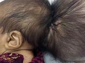 bébé afghan deux têtes