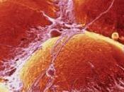 DIABÈTE, OBÉSITÉ: sait cibler mauvaise graisse Science Translational Medicine