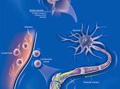 Administration teriflunomide patients présentant premier épisode suggérant sclérose plaques (TOPIC) essai phase randomisé, double-aveugle contrôlé placebo