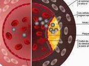 #hypercholestérolémie #evolocumab Inhibition PCSK9 l'aide evolocumab (AMG 145) dans l'hypercholestérolémie familiale (RUTHERFORD-2) étude randomisée, double aveugle, contrôlée placebo
