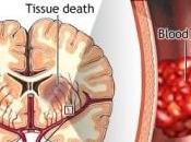 AVC: L'efficacité thrombectomie mécanique pour prévenir handicap NEJM