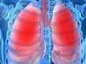 ASTHME SÉVÈRE: promesses d'un médicament cardiaque INSERM American Journal Respiratory Critical Care Medicine
