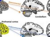 AUTISME: Quand cortex sensori-moteur prend cognition Biological Psychiatry