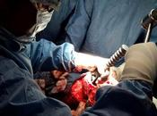 Nouvelle technique chirurgie prothétique genou Algérie