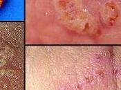 cara mengobati herpes zoster secara alami