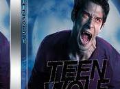 [Test DVD] Teen Wolf Saison partie série