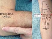 Épicondylite latérale traitement médical chirurgical