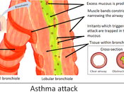#thelancetrespiratorymedicine #asthme #interleukine13 #tralokinumab #corticostéroïde Effet tralokinumab, anticorps monoclonal neutralisant l'interleukine-13, l'inflammation éosinophilique voies aériennes dans l'asthme modéré sévère non-...