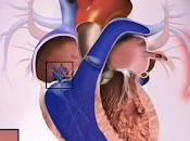 #thelancetrespiratorymedicine #HyperTensionPulmonaireThromboEmoliqueChronique #Treprostinil Treprostinil voie sous-cutanée pour traitement l'HyperTension Pulmonaire Thrombo Embolique Chronique (CTREPH) essai phase double-aveugle,