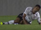 Vidéo choc: Jambe brisée pour joueur foot brésilien Fessin