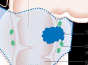 #eclinicalmedicine #cancerdurectum #chimioradiothérapie Comparaison résultats suite traitement néoadjuvant total suivant chimio-radiothérapie néoadjuvante totale chez patients atteints cancer rectum localement avancé