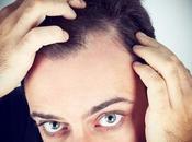 Quels types compléments capillaires face perte cheveux