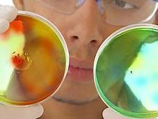 OBÉSITÉ COVID-19 sévérité expliquée interaction virus-bactéries