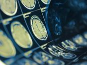 COVID-19 baisse préoccupante hospitalisations pour urgences neurologiques