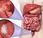 #thelancetoncology #cancercolorectal #HER2 #trastuzumabderexuctecan Trastuzumab deruxtecan 8201) chez patients atteints cancer colorectal métastasé exprimant HER2 (DESTINY CRC01): étude phase multicentrique, ouverte